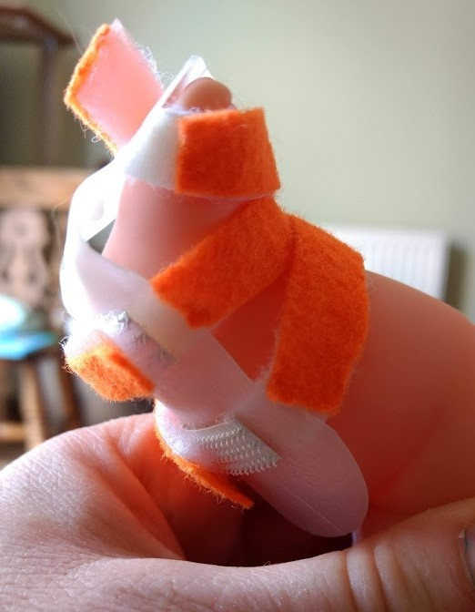 Image shows a dolls foot in a home made splint, made from a piece of plastic milk carton, some velcro and orange felt.