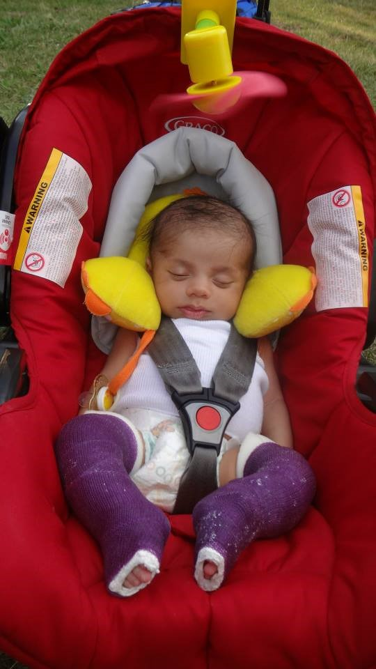 Image shows a very young baby asleep in a padded car seat. The baby has both legs in plaster casts.